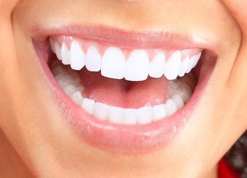 Close up of beaming, white smile l Doylestown Dental Group