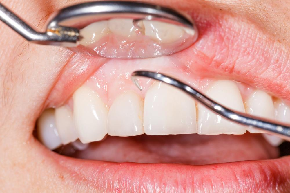 Close up of mouth being cleaned with dental tool | Dentist Doylestown PA