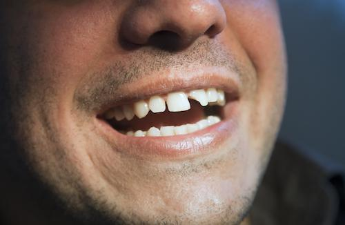 Close up of man with chipped tooth l Full Mouth Rehabilitation Doylestown PA