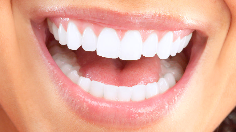 Teeth Whitening | Doylestown PA Dentist