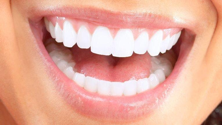 White smile | Teeth Whitening in Doylestown PA | Doylestown PA Dentist