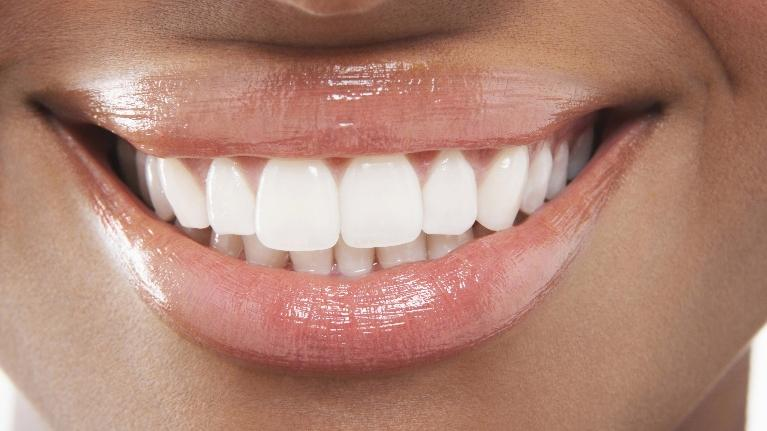 Teeth Whitening Care | Doylestown Dentist