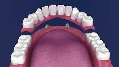 Close up of dental implant model l Doylestown PA Dentist