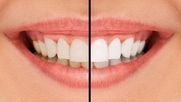 Teeth whitening in Doylestown PA