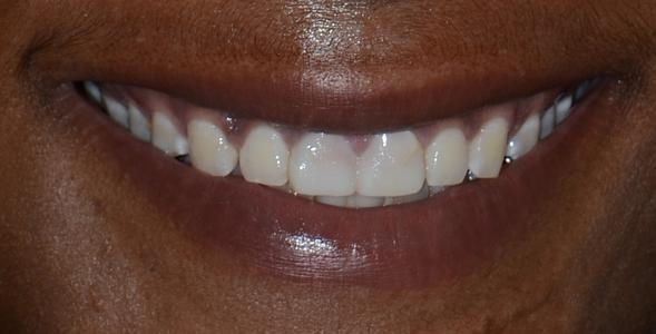 Image of teeth before crowns and bridge | Doylestown PA