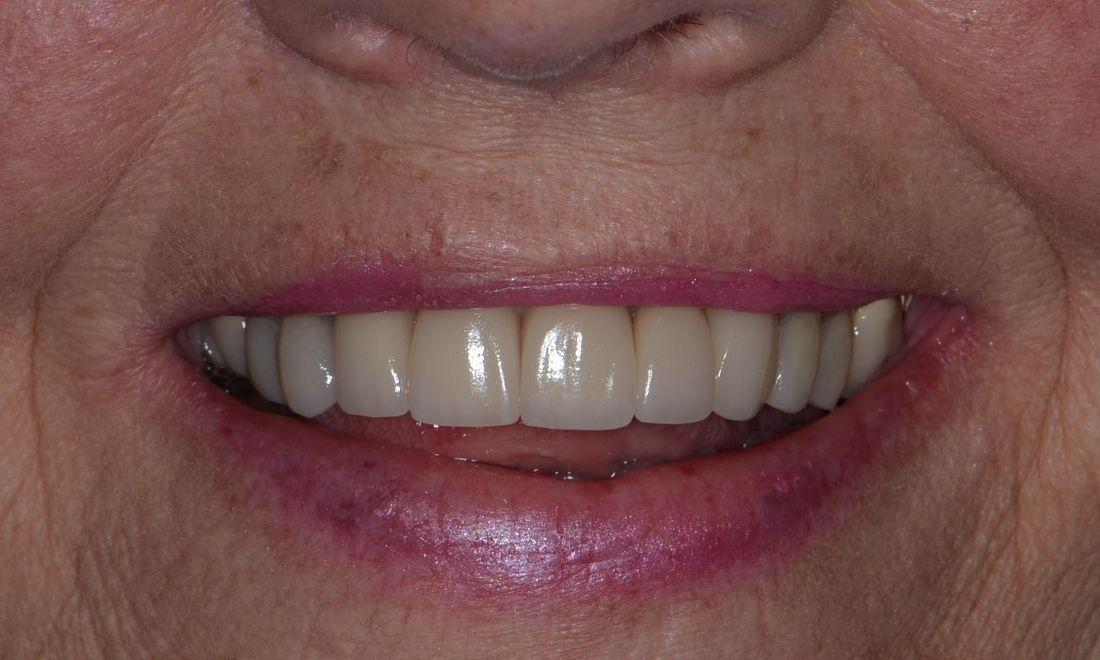 image of the same teeth after custom crowns | Doylestown PA