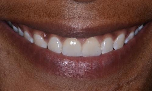 image of the same teeth after crowns and bridge | Doylestown PA