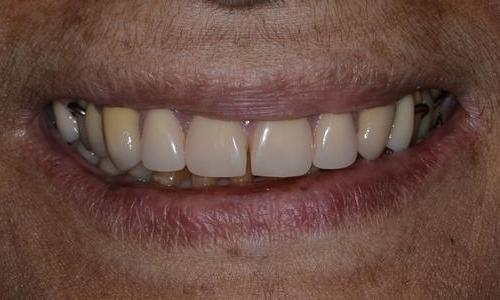 image of the same teeth after crowns and a partial denture | Doylestown PA