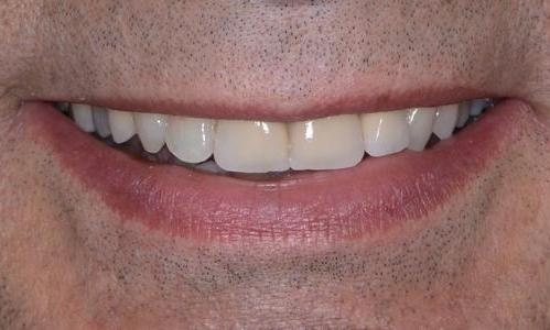 image of the same teeth after crowns | Doylestown PA