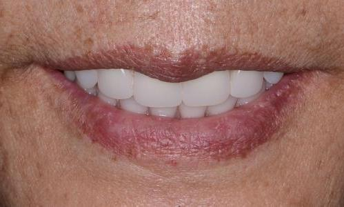 image of the same teeth after an upper denture and lower hybrid | Doylestown PA