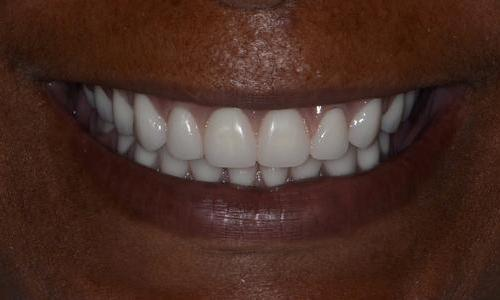 image of new dentures on the same patient | Doylestown PA