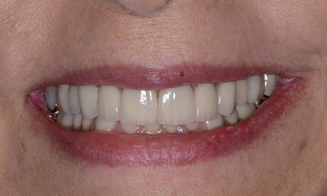 after photo of teeth | Full-Mouth Rehabilitation in Doylestown PA