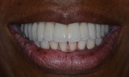 image of the same teeth after crowns and dental implants | Doylestown PA