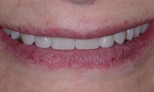 image of the same teeth after crowns and a retainer | Doylestown PA
