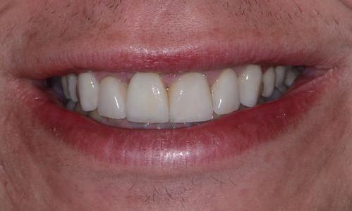 image of the same teeth after veneers and an implant | Doylestown PA