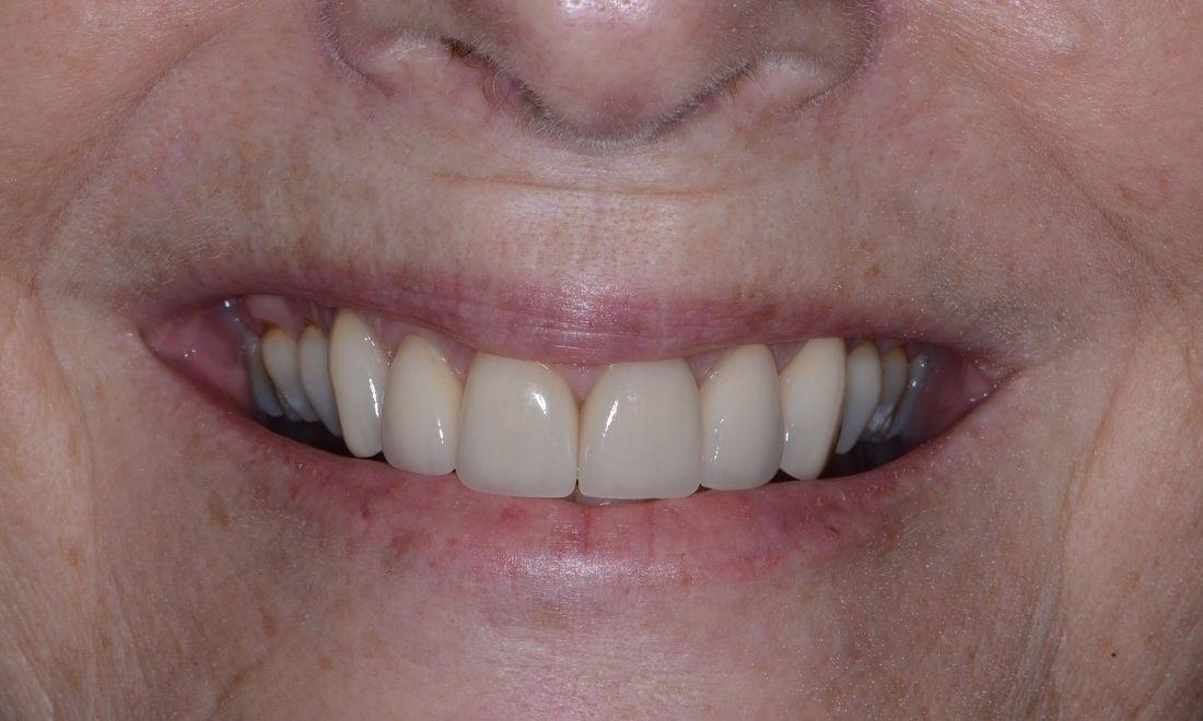 image of the same teeth after new dental crowns | Dentist in Doylestown PA
