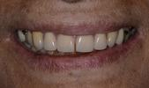 Crowns-and-Partial-Dentures-After-Image