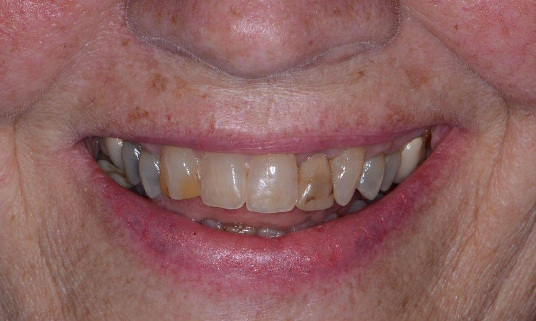 Image of stained teeth in poor positions | Doylestown PA
