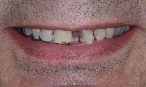 image of chipped teeth with decay | Doylestown PA