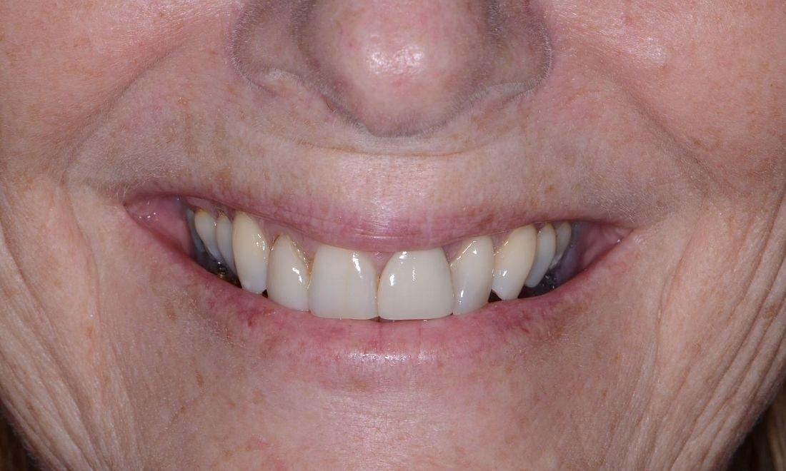 image of teeth with old veneers | Dental Crowns in Doylestown PA