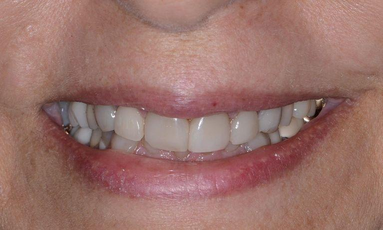 before photo of teeth | Full-Mouth Rehabilitation in Doylestown PA
