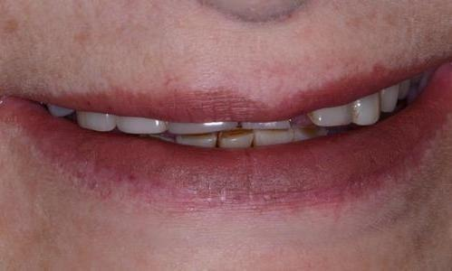 image of teeth with fractures and flares | Doylestown PA