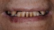 Crowns-and-Partial-Dentures-Before-Image