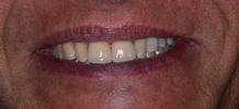 Dental-Implants-and-Crowns-After-Image