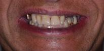 Dental-Implants-and-Crowns-Before-Image